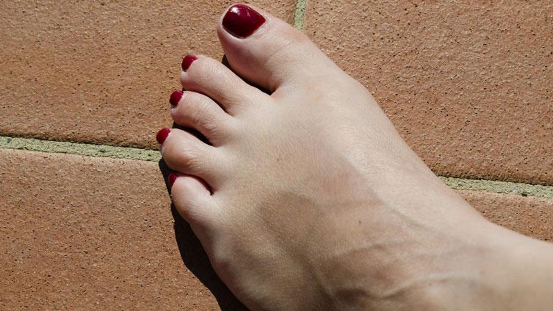Varför svullnar fötterna