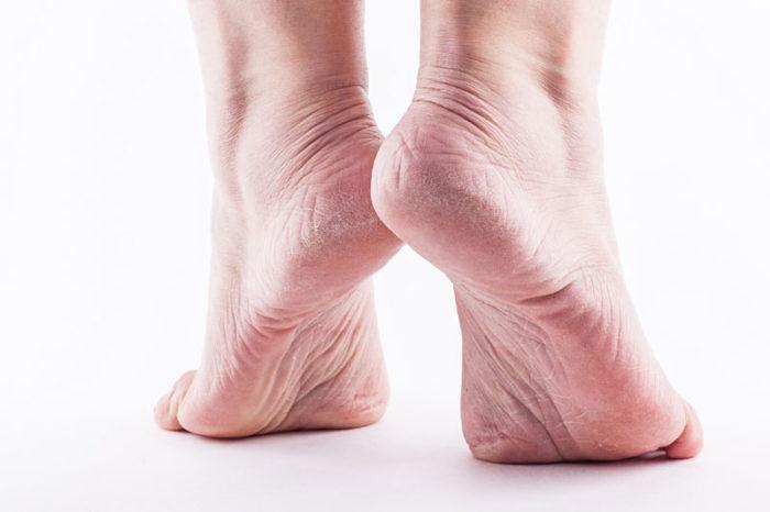 fd31c9b4d82 En vanlig orsak till spruckna hälar är att man går i skor som inte håller  måttet