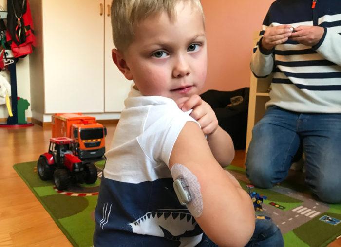 Theo Stenlundh visar sin sensor på armen som mäter hans blodsockervärde. Diabetes typ 1, barn.